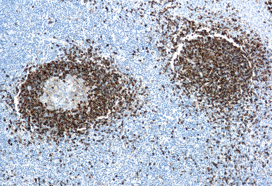 Mouse Monoclonal Antibody to Hairy Cell Leukemia(Clone: DBA.44)(Discontinued)