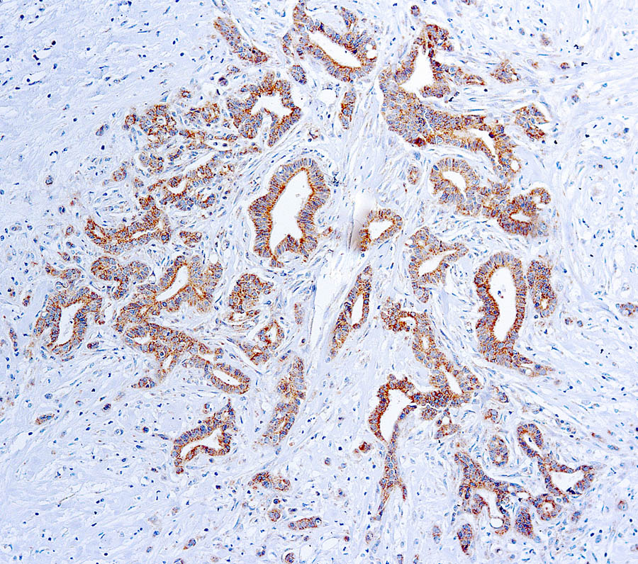Mouse Monoclonal Antibody to VEGF(Clone: VG1)(Discontinued)
