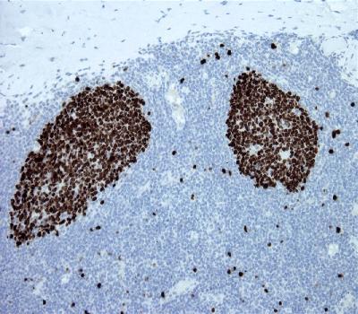 Mouse Monoclonal Antibody to Ki67(Clone :BS4)