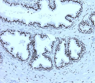 Mouse Monoclonal Antibody to Androgen receptor (Clone :BS46)