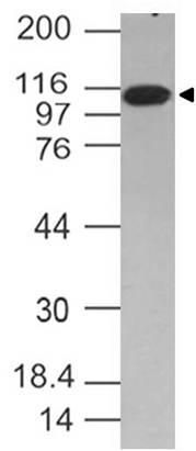 NALE™ Monoclonal Antibody to TLR6 (Clone: ABM1B50)