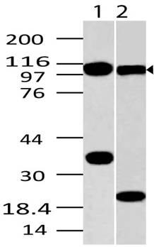 Monoclonal Antibody to TLR9 (Clone: ABM1C51)