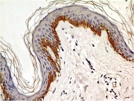 Monoclonal Antibody to TLR4 / CD284 (Clone: ABM19C4)