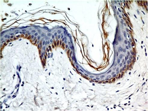 Monoclonal Antibody to TLR5 (Clone: ABM22G1)