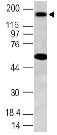 Monoclonal Antibody to NALP3 (Clone: ABM2D48)