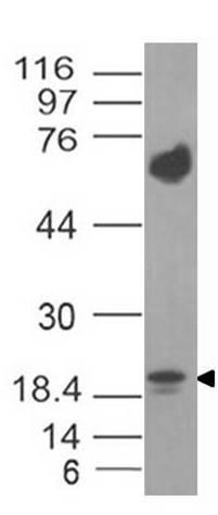 Monoclonal Antibody to IL-17F (Clone: ABM2H17)