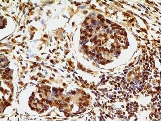 Fig-2 : Immunohistochemical analysis of HMGB1  in adenocarcinoma of stomach using HMGB1 antibody (Clone: ABM24D3) at 1 µg/ml.
