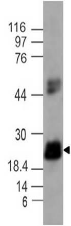 Monoclonal Antibody to IL-17C (Clone: ABM2H52)