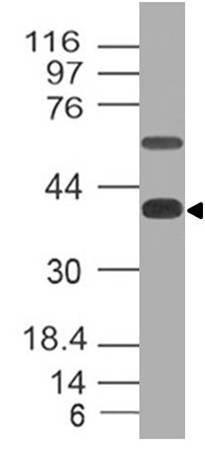 Monoclonal Antibody to CD161 (Clone: ABM2D74)