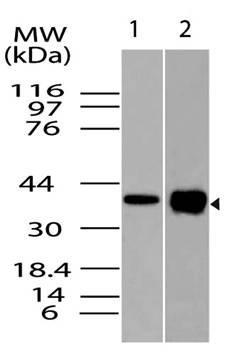 Monoclonal Antibody to RunX3 (Clone: ABM28D1)