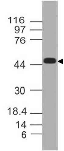 Monoclonal Antibody to TREX1 (Clone: ABM2A85)