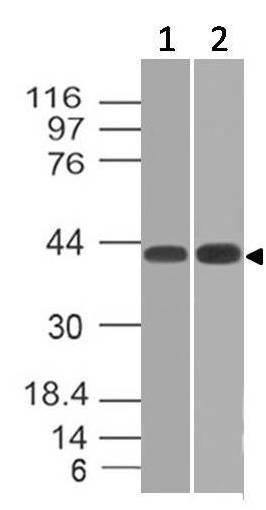 Monoclonal Antibody to TSLP Receptor (Clone: ABM2D87)