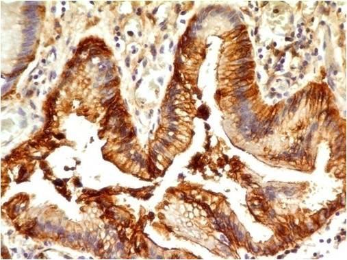 Monoclonal Antibody to CD33(Clone: ABM29D3)