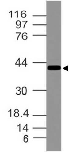 Monoclonal Antibody to Ataxin-3 (Clone: ABM30C2)