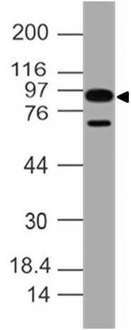 Monoclonal Antibody to hIL-17 AR (Clone: ABM4A10)