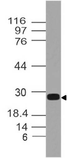 Monoclonal Antibody to hEBI3 (Clone:  ABM40H9)