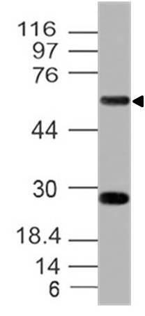 Monoclonal Antibody to hCD39 (Clone:  ABM41E2)