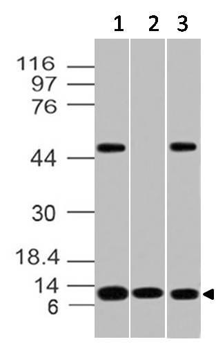 Monoclonal Antibody to S100A8, human (Clone: ABM41E4)