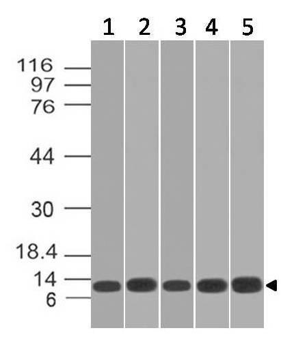 Monoclonal Antibody to S100A8, human (Clone: ABM4G30)