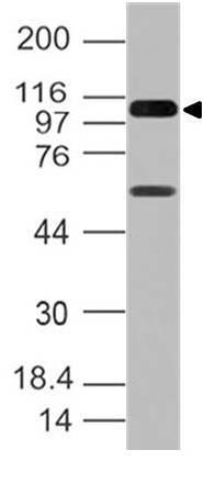 Monoclonal Antibody to RIG-I (Clone: ABM4H29)