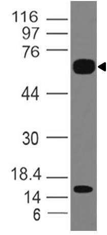 Monoclonal Antibody to IL-36R (Clone: ABM47A2)