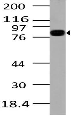 Monoclonal Antibody to Ikkb (Clone: ABM10E6)