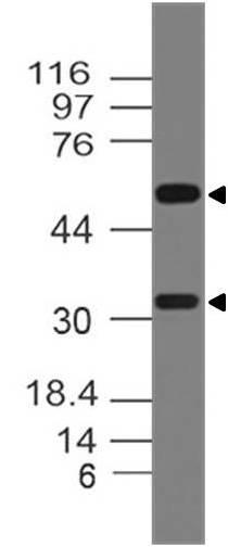 Monoclonal Antibody to RANKL (Clone: ABM10A7)