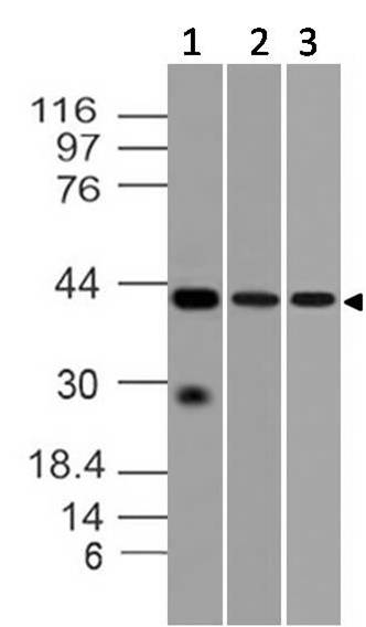 Monoclonal Antibody to DFF-40 (Clone: ABM1H15)