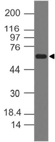 Monoclonal Antibody to RANKL (Clone: ABM12D6)