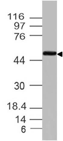 Monoclonal Antibody to Ikk Gamma (Clone: ABM15D9)