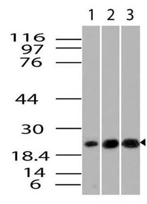 Monoclonal Antibody to kB-Ras1 (Clone: ABM17B5)