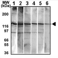Mouse Monoclonal Antibody to Bi-Phospho-MET/HGFR(Y1234/Y1235) (Clone: 6AT1877)(Discontinued)
