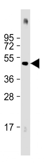 Mouse Monoclonal Antibody to HIS Tag (Clone: 6AT18)