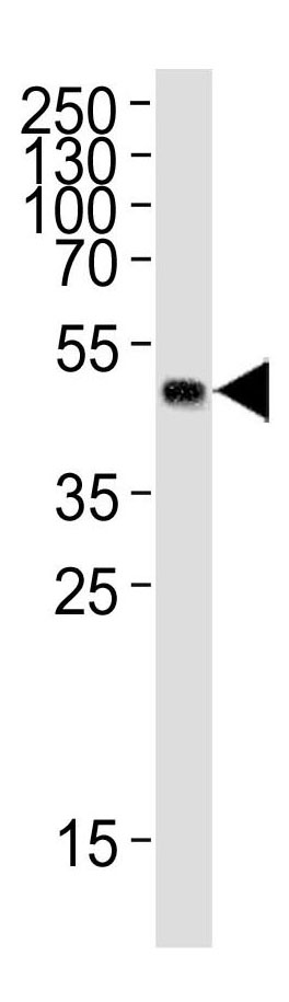 Mouse Monoclonal Antibody to GST Tag (Clone: 9AT106)