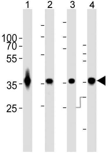 Mouse Monoclonal Antibody to GAPDH (Clone: 1A10A10)(Discontinued)