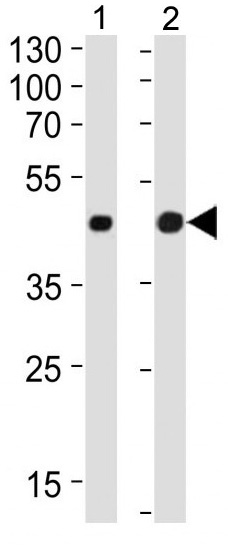 Mouse Monoclonal Antibody to Beta-actin (Clone: 8H10D10)(Discontinued)