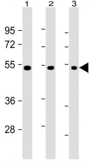 Mouse Monoclonal Antibody to VEGF3 (Clone: 30AT1174.77)(Discontinued)