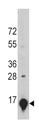 Mouse Monoclonal Antibody to GLT (Clone: 24CT661.4.3)(Discontinued)
