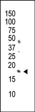 Mouse Monoclonal Antibody to Phospho-Histone H3(S10) (Clone: 44AT1232.94)