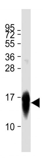 Mouse Monoclonal Antibody to LC3  (APG8)(Clone: 166AT1234)(Discontinued)