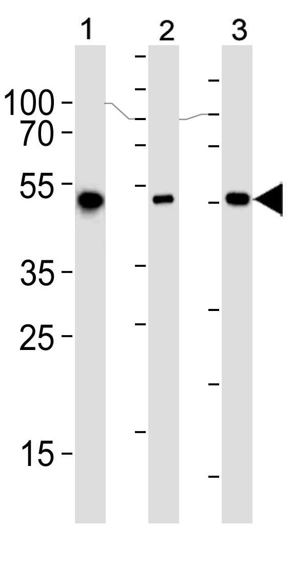 Mouse Monoclonal Antibody to ALDH2 (Clone: 138CT22.3.8)(Discontinued)