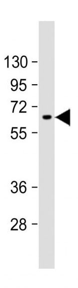 Mouse Monoclonal Antibody to AFP  (N-term)(Clone: 143CT50.11.8)(Discontinued)