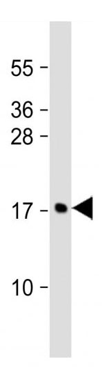 Mouse Monoclonal Antibody to MCFD2 (Clone: 165CT13.1.6)