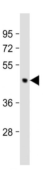 Mouse Monoclonal Antibody to PDK2 (Clone: 180CT10.2.3)(Discontinued)