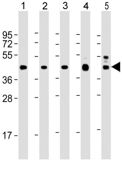 Mouse Monoclonal Antibody to VEGFC (Clone: 197CT7.3.4)(Discontinued)