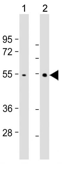 Mouse Monoclonal Antibody to TRAF2 (Clone: 214CT16.3.4)(Discontinued)