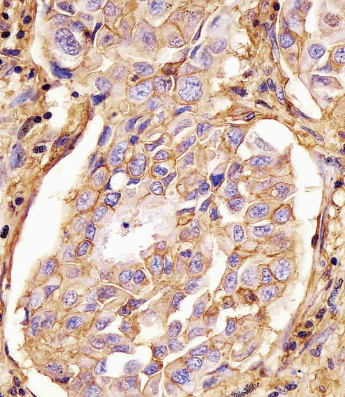 Mouse Monoclonal Antibody to CD44 (Clone: Hermes-3)(Discontinued)