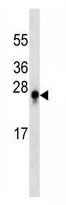 Mouse Monoclonal Antibody to S100B (Clone: 271CT14.3.3)(Discontinued)