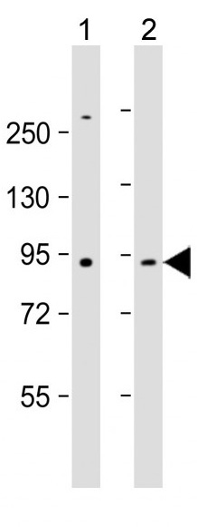 Mouse Monoclonal Antibody to MMP9 (Clone: 331CT17.4.4)(Discontinued)