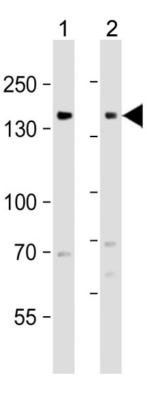 Mouse Monoclonal Antibody to EGFR  (C-term)(Clone: 688CT33.1.3)(Discontinued)